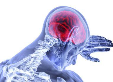 Mesterséges intelligencia – remény a stroke-betegeknek